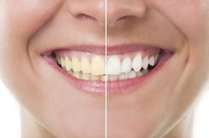 How To Whiten Yellow Teeth Fast